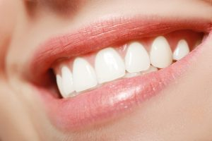 Facts about veneers to enhance your smile