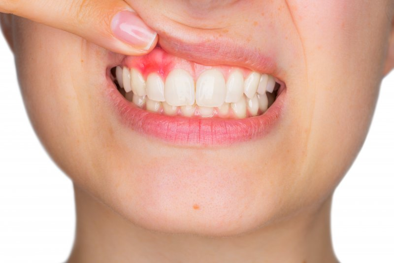 person pointing to unhealthy gums